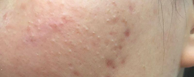 痘痘肌肤的形成原因-轻博客