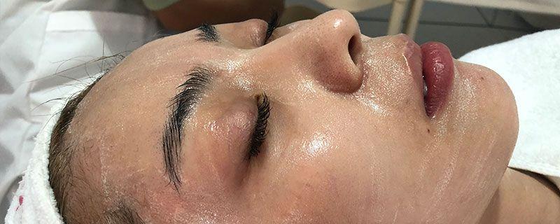 皮肤不耐受怎么修复插图